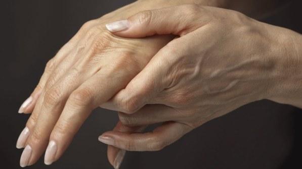 Remedios Caseros Para Artritis Reumatoide.jpg